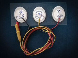 Электрод одноразовый для новорожденного PG10S/RU2330W-DIN